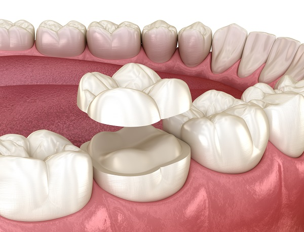 How Can A Dental Onlay Treat A Damaged Tooth?